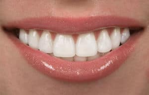 healthy tooth enamel