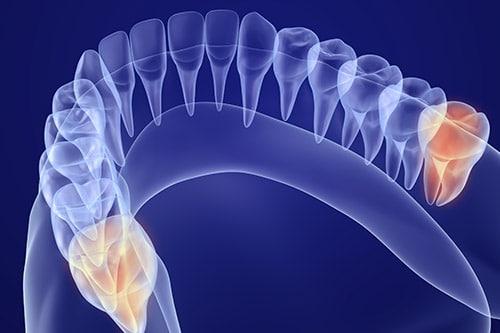 xray of wisdom teeth before extraction